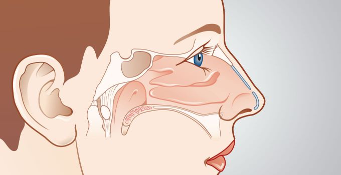Special nasal surgery header picture